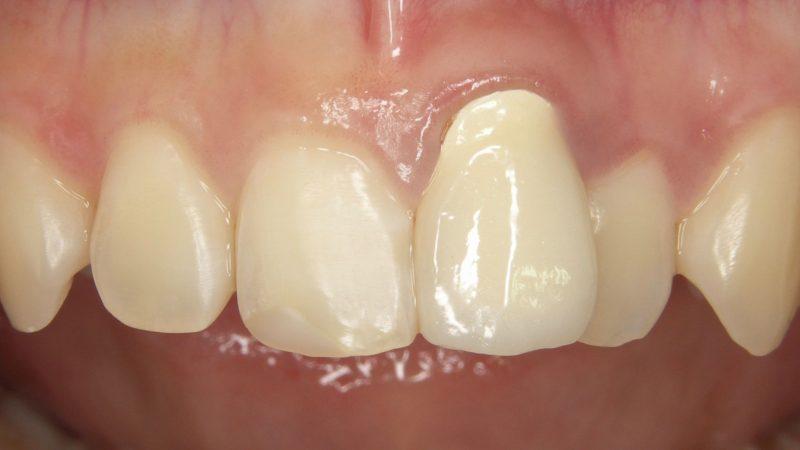 審美歯科症例治療前