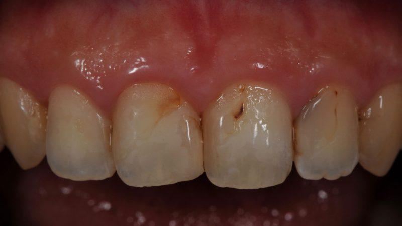 審美歯科ラミネートベニア