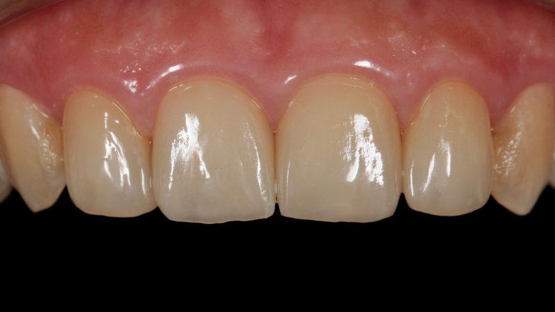 審美歯科ラミネートベニア治療後